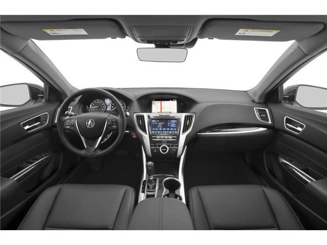2019 Acura TLX Tech (Stk: 18159) in Ottawa - Image 5 of 9