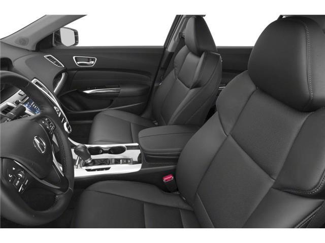 2019 Acura TLX Tech (Stk: 18159) in Ottawa - Image 6 of 9