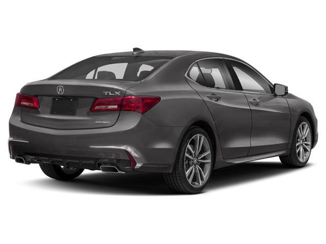 2019 Acura TLX Tech (Stk: 18141) in Ottawa - Image 3 of 9