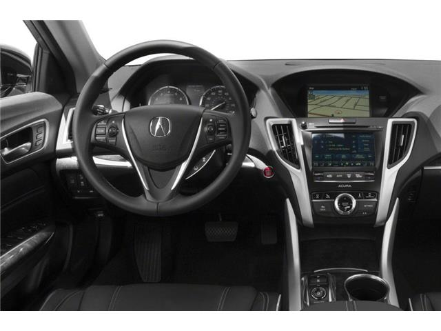 2019 Acura TLX Tech (Stk: 18141) in Ottawa - Image 4 of 9
