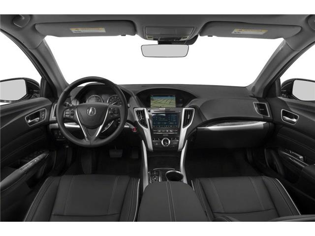 2019 Acura TLX Tech (Stk: 18141) in Ottawa - Image 5 of 9