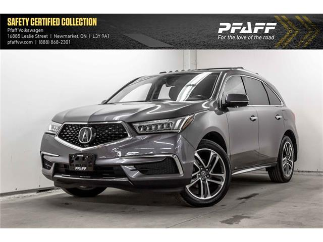 2017 Acura MDX Technology Package (Stk: 19622) in Newmarket - Image 1 of 22