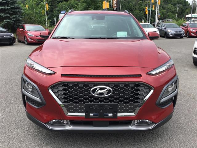 2019 Hyundai Kona 1.6T Ultimate (Stk: R95747) in Ottawa - Image 2 of 11