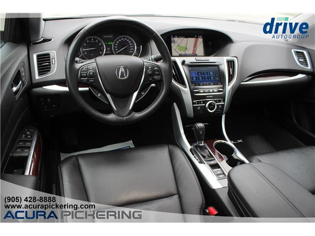 2015 Acura TLX Tech (Stk: AP4904) in Pickering - Image 2 of 31