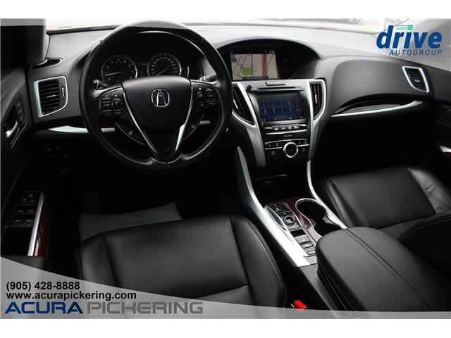 2016 Acura TLX Tech (Stk: AP4910) in Pickering - Image 2 of 34
