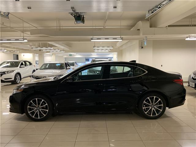 2017 Acura TLX Base (Stk: AP3324) in Toronto - Image 2 of 31