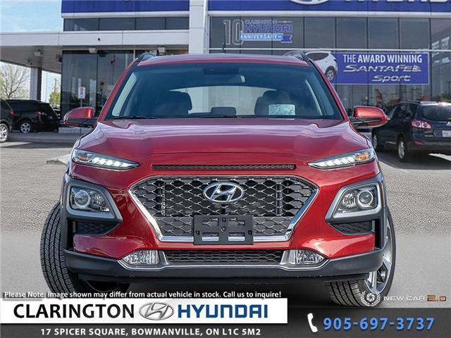 2019 Hyundai Kona 1.6T Trend (Stk: 19517) in Clarington - Image 2 of 24