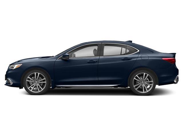 2020 Acura TLX Elite A-Spec (Stk: 20043) in Burlington - Image 2 of 9