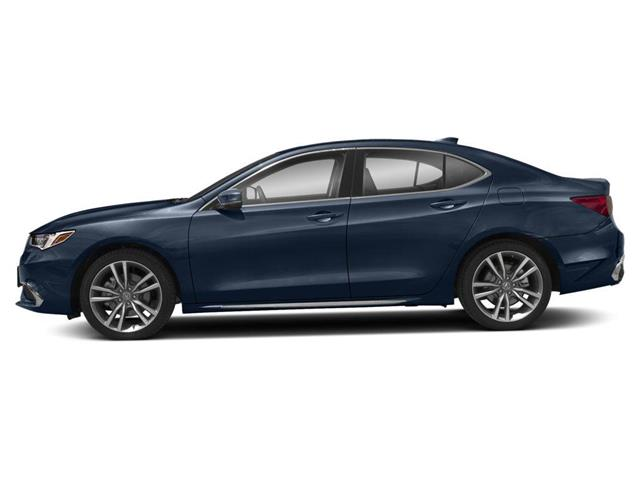2020 Acura TLX Tech (Stk: TX12746) in Toronto - Image 2 of 9