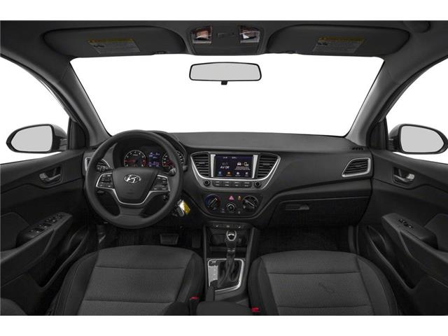 2020 Hyundai Accent Preferred (Stk: 40796) in Mississauga - Image 5 of 9