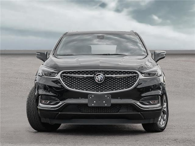 2019 Buick Enclave Avenir (Stk: 9298122) in Scarborough - Image 2 of 22