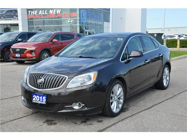 2015 Buick Verano Leather (Stk: 179894) in Milton - Image 1 of 22