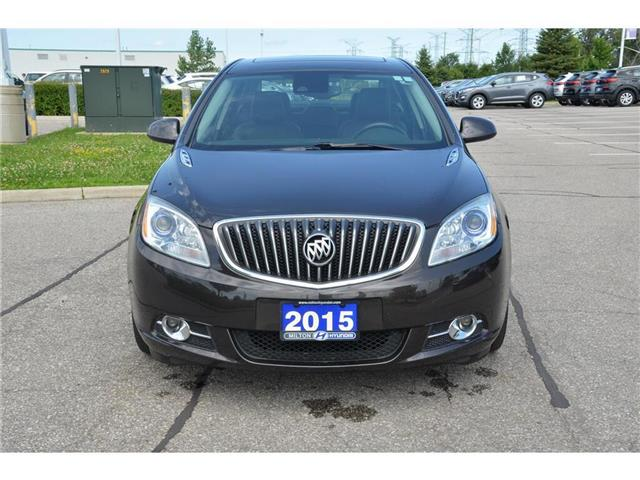 2015 Buick Verano Leather (Stk: 179894) in Milton - Image 2 of 22