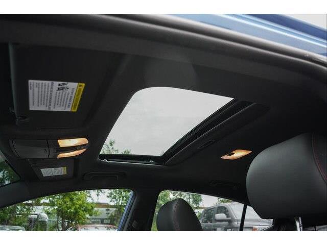 2018 Hyundai Elantra Sport (Stk: P2082A) in Ottawa - Image 3 of 23