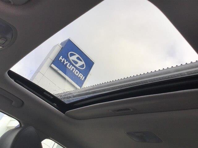 2020 Hyundai Elantra Luxury (Stk: H12146) in Peterborough - Image 18 of 21