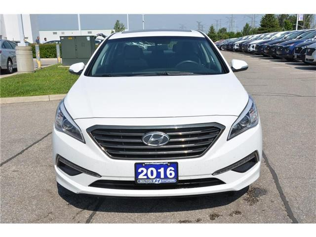 2016 Hyundai Sonata  (Stk: 293049) in Milton - Image 2 of 22