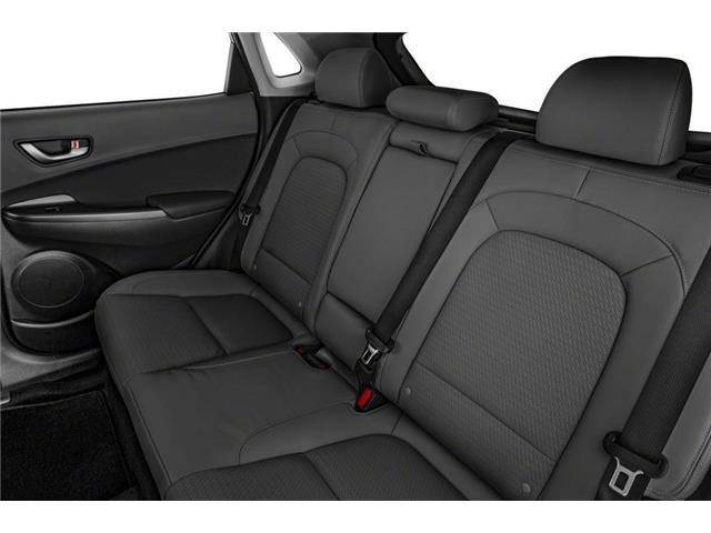 2019 Hyundai Kona 2.0L Luxury (Stk: 392951) in Whitby - Image 8 of 9