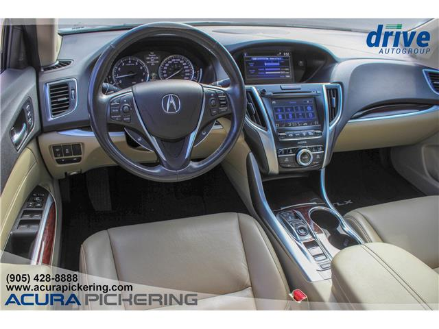 2015 Acura TLX Tech (Stk: AP4924A) in Pickering - Image 2 of 31