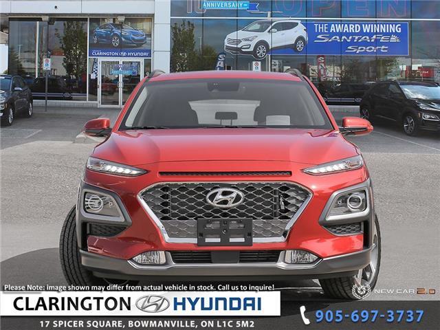 2019 Hyundai Kona 1.6T Ultimate (Stk: 19395) in Clarington - Image 2 of 24