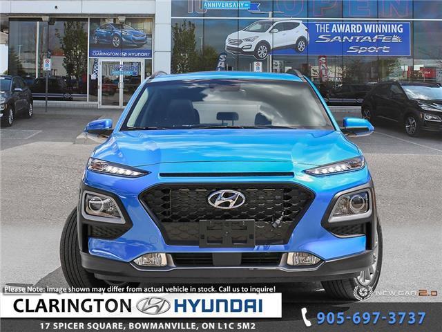 2019 Hyundai Kona 2.0L Luxury (Stk: 19536) in Clarington - Image 2 of 24