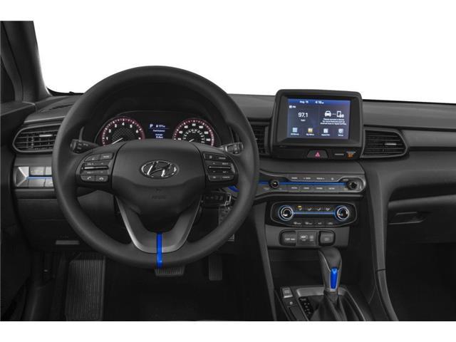 2020 Hyundai Veloster Luxury (Stk: 023282) in Whitby - Image 4 of 9
