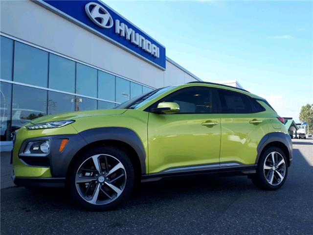 2020 Hyundai Kona 1.6T Ultimate w/Lime Colour Pack (Stk: HA3-3303) in Chilliwack - Image 1 of 1