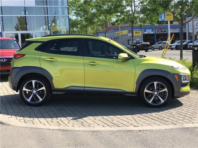 2018 Hyundai Kona 1.6T Ultimate (Stk: 29059A) in East York - Image 12 of 30