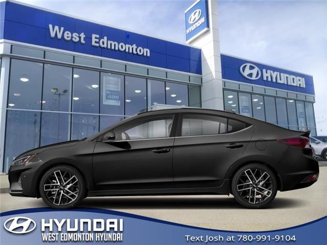 2019 Hyundai Elantra Sport (Stk: EL95696) in Edmonton - Image 1 of 1