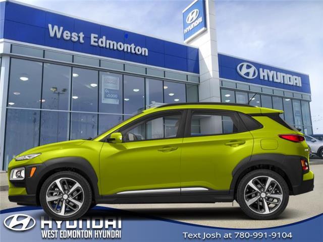 2019 Hyundai Kona 1.6T Ultimate (Stk: KN94157) in Edmonton - Image 1 of 1