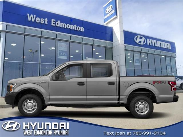 2018 Ford F-150  (Stk: P1015) in Edmonton - Image 1 of 1