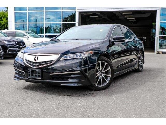2015 Acura TLX Tech (Stk: 18760A) in Ottawa - Image 1 of 27