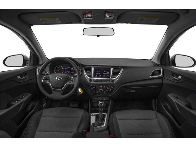 2020 Hyundai Accent Preferred (Stk: N21483) in Toronto - Image 5 of 9