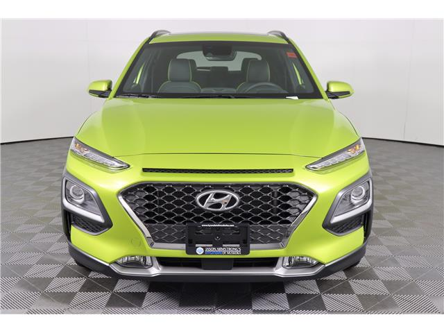 2020 Hyundai Kona 1.6T Ultimate w/Lime Colour Pack (Stk: 120-033) in Huntsville - Image 2 of 34
