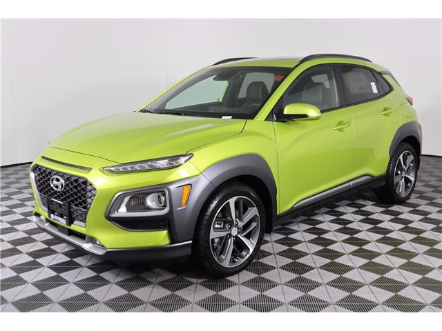 2020 Hyundai Kona 1.6T Ultimate w/Lime Colour Pack (Stk: 120-033) in Huntsville - Image 3 of 34