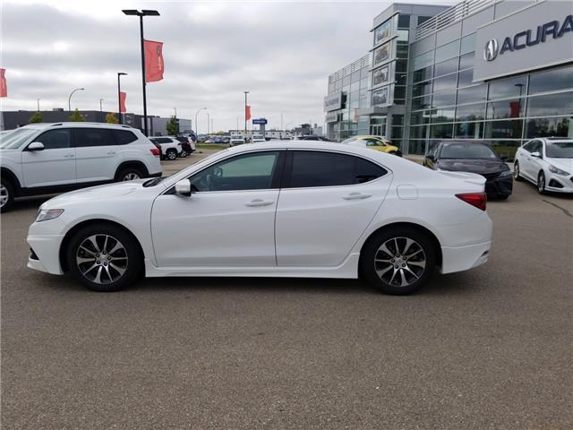 2015 Acura TLX Elite (Stk: A4097) in Saskatoon - Image 2 of 20