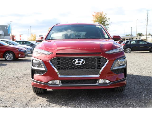 2020 Hyundai Kona 1.6T Trend (Stk: R05193) in Ottawa - Image 2 of 7