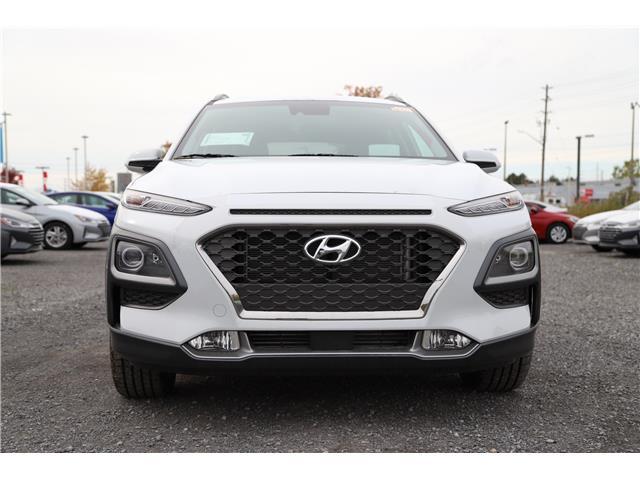 2020 Hyundai Kona 1.6T Ultimate (Stk: R05238) in Ottawa - Image 2 of 8
