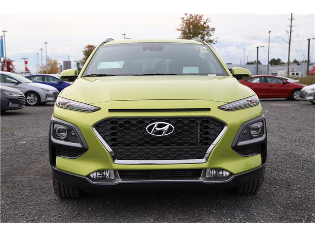 2020 Hyundai Kona 1.6T Ultimate w/Lime Colour Pack (Stk: R05158) in Ottawa - Image 2 of 9