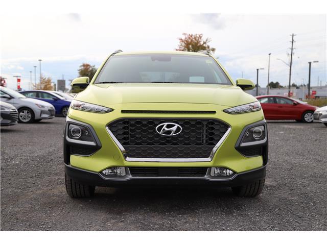 2020 Hyundai Kona 1.6T Ultimate w/Lime Colour Pack (Stk: R05157) in Ottawa - Image 2 of 9