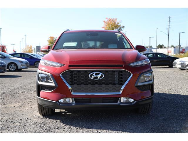 2020 Hyundai Kona 1.6T Ultimate w/Red Colour Pack (Stk: R05316) in Ottawa - Image 2 of 8