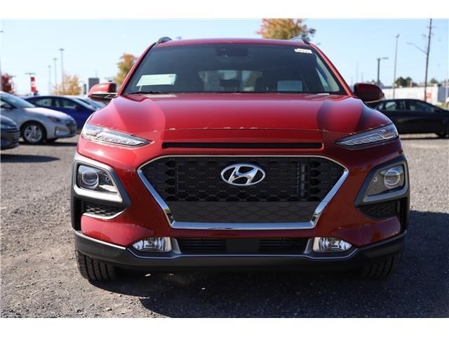 2020 Hyundai Kona 1.6T Ultimate w/Red Colour Pack (Stk: R05317) in Ottawa - Image 2 of 8