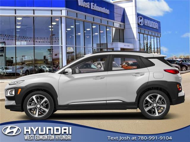 2020 Hyundai Kona 1.6T Ultimate (Stk: KN03082) in Edmonton - Image 1 of 1