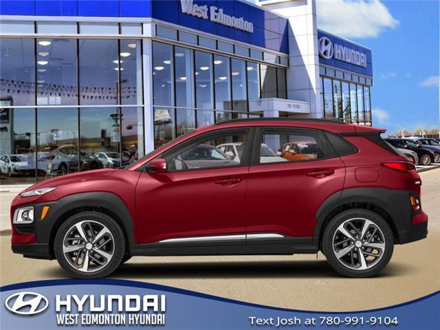2020 Hyundai Kona 1.6T Trend (Stk: KN00316) in Edmonton - Image 1 of 1