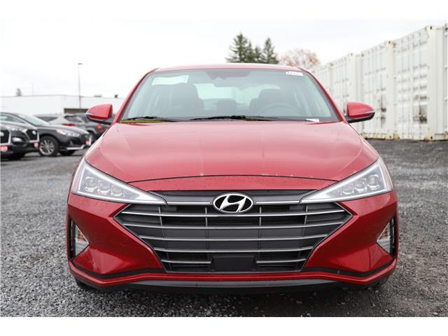 2020 Hyundai Elantra Ultimate (Stk: R05082) in Ottawa - Image 2 of 19