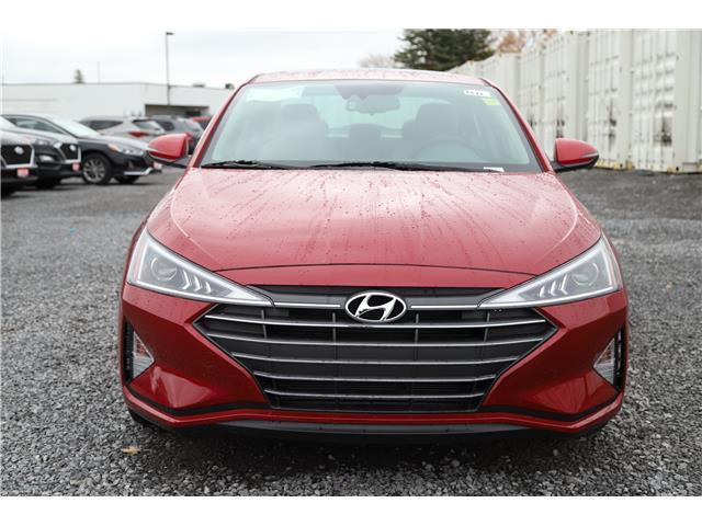 2020 Hyundai Elantra Luxury (Stk: R05162) in Ottawa - Image 2 of 10