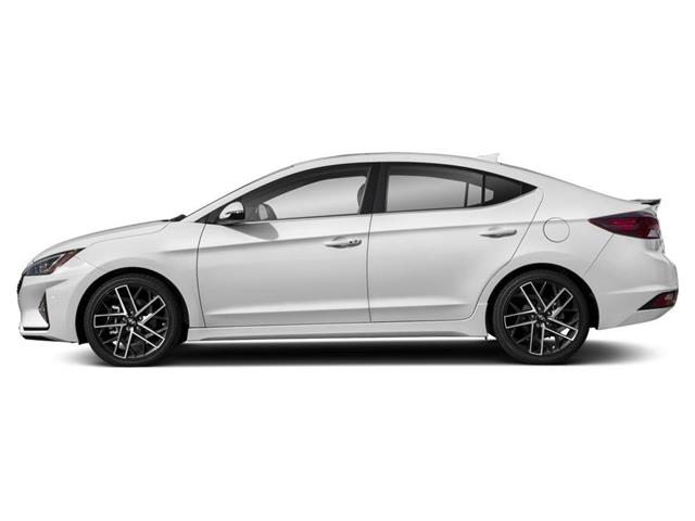 2020 Hyundai Elantra Sport (Stk: 002399) in Whitby - Image 2 of 9