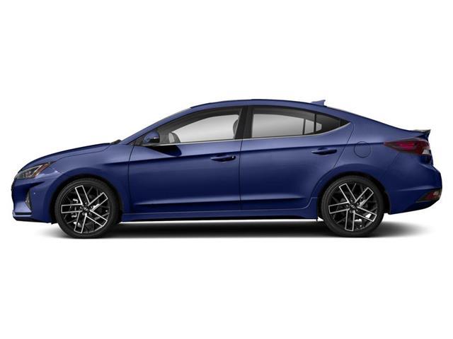 2020 Hyundai Elantra Sport (Stk: 001792) in Whitby - Image 2 of 9