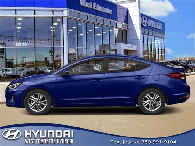 2019 Hyundai Elantra  (Stk: E4779) in Edmonton - Image 1 of 1
