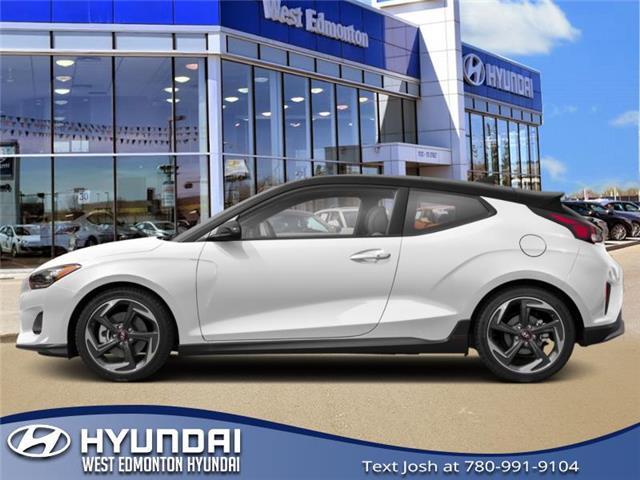 2020 Hyundai Veloster Turbo (Stk: VL08743) in Edmonton - Image 1 of 1
