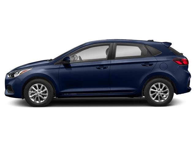 2020 Hyundai Accent Ultimate (Stk: 110300) in Whitby - Image 2 of 9